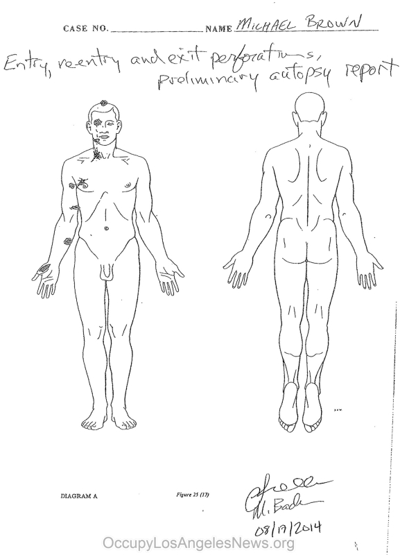 Michael Brown Autopsy by Dr. Michael Baden